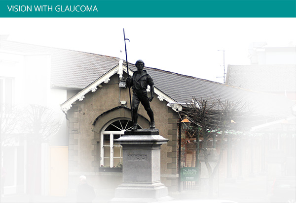 Vision with Glaucoma Ryans Opticians and Medical Eye Center Wexford
